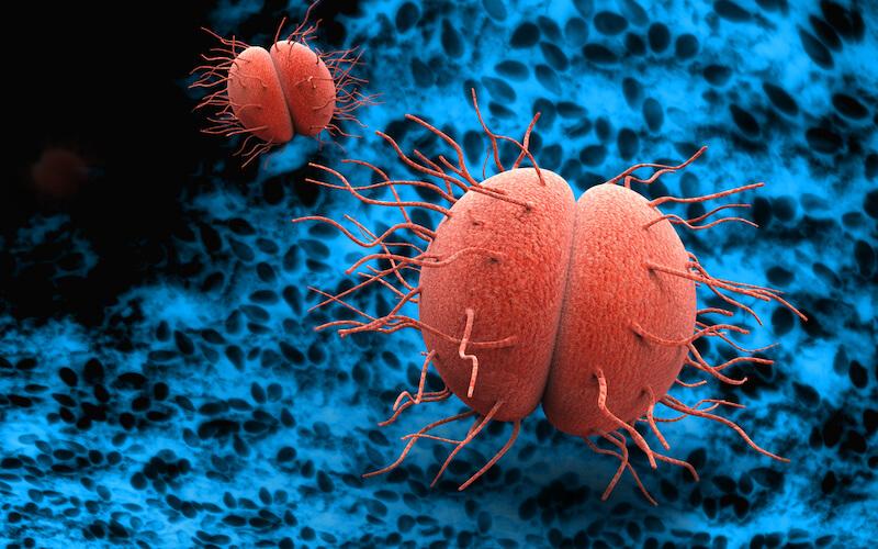 Neisseria gonorrhoeae gonocoque