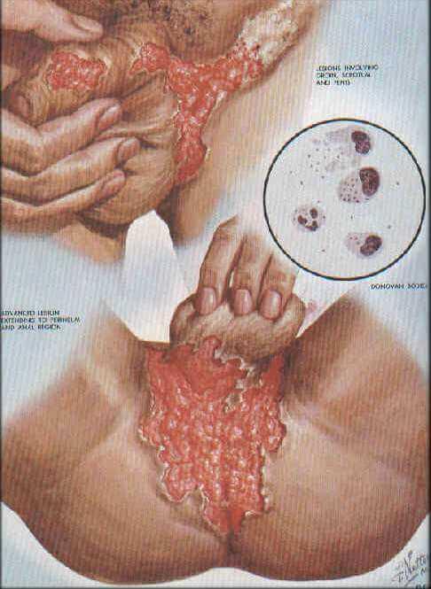 Granulome inguinal