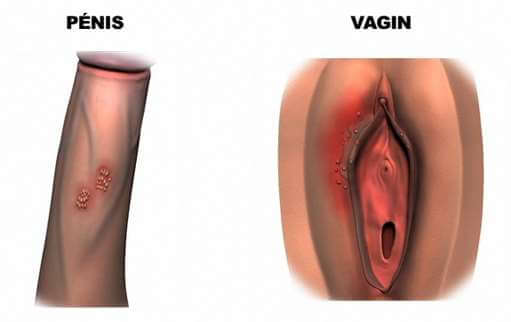 Ulcérations et vésicules de l'herpès génital