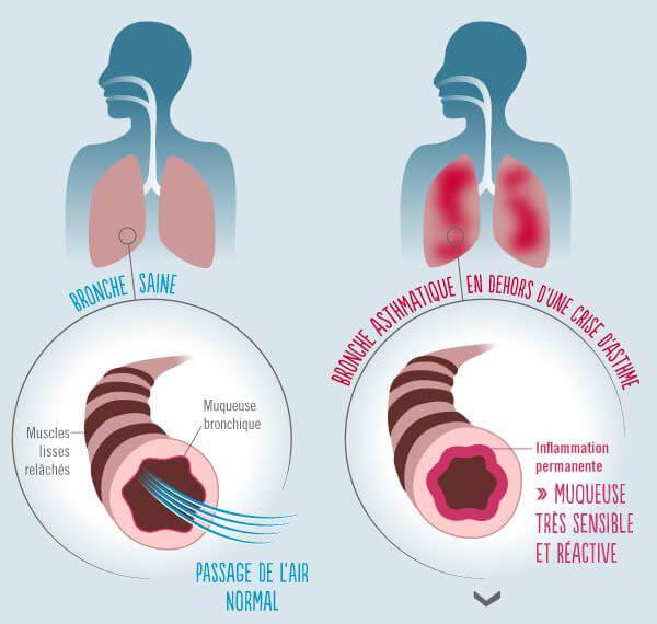 Vue globale mecanisme asthme - Ameli.fr