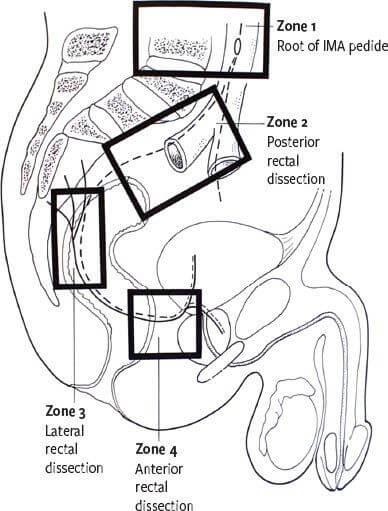 Zones à risque de lésions nerveuses lors de la chirurgie rectale